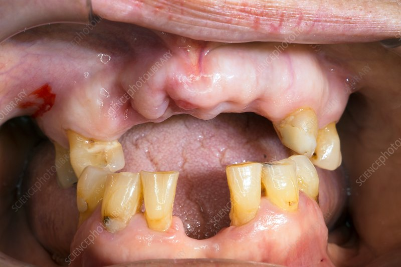 Dental Abscess Stock Image C033 3470 Science Photo Library