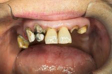 Severe tooth decay