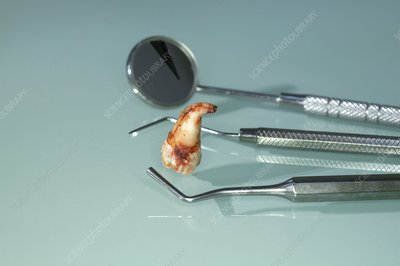 Extracted wisdom tooth