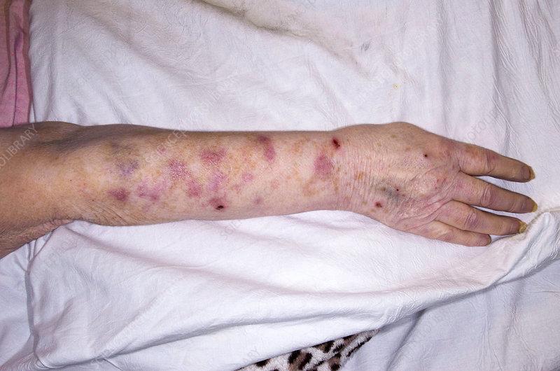Medicine For Shingles Virus Home Remedies For Shingles