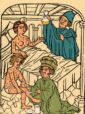 Uroscopy, Patients with Syphilis, 1497
