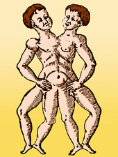 Conjoined Twins, 16th Century