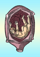 Abnormal Fetal Presentation, 16th Century