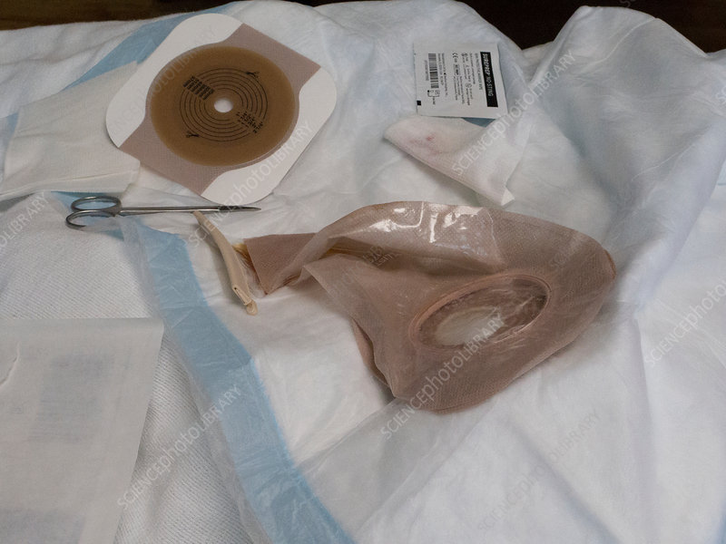 Colostomy bag