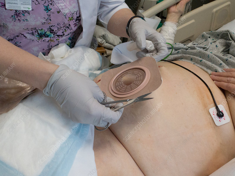 Fitting a colostomy bag