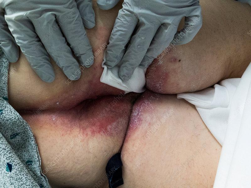 Thrush infection