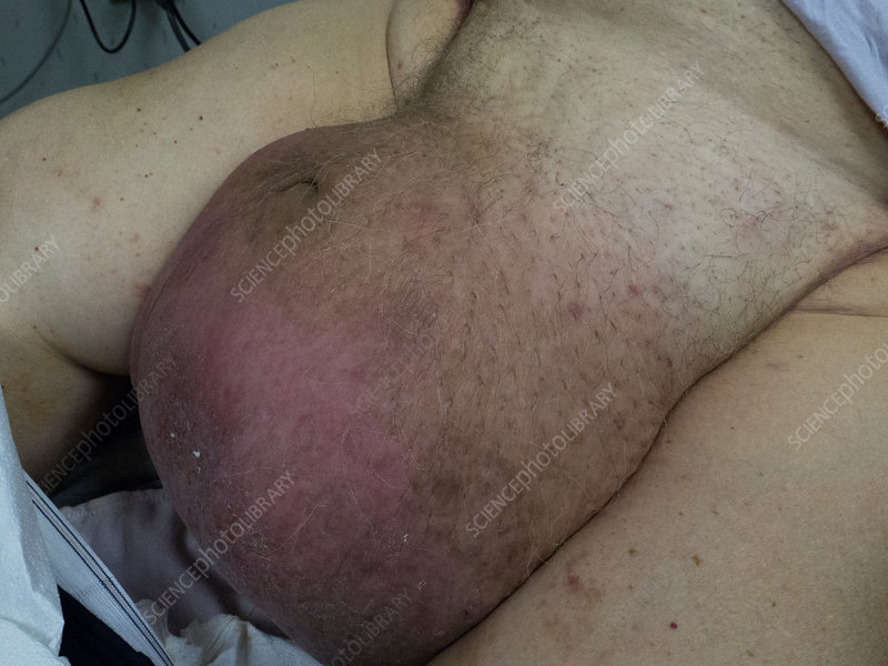 Hydrocele hernia adults - Things You Didnt Know