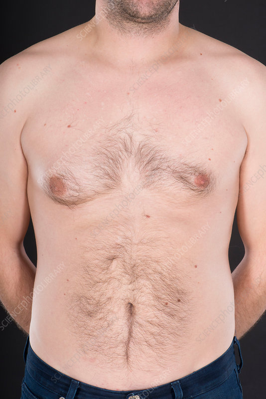 Enlarged male breast