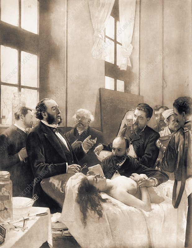Pean demonstrating artery clamping, 1880s