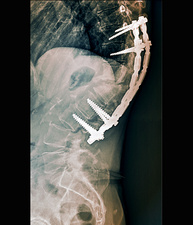 Spinal implant in kyphosis, X-ray