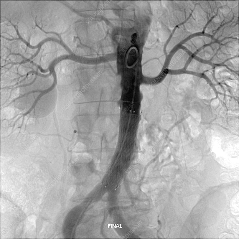 Final position of stent in aorta, X-ray