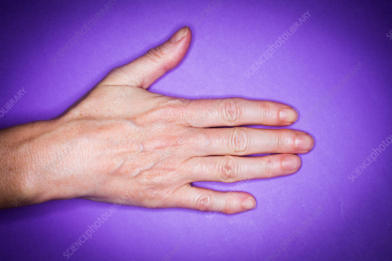 Finger deformed by rheumatism