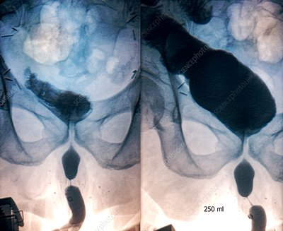 Augmented bladder, retrograde cystography