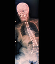 Spinal implants in scoliosis, X-ray