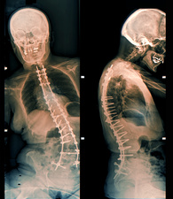 Spinal implants in scoliosis, X-rays