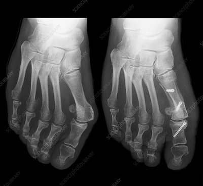 Bunion surgery assessment, X-rays