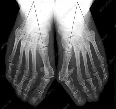 Bunion assessment, X-rays