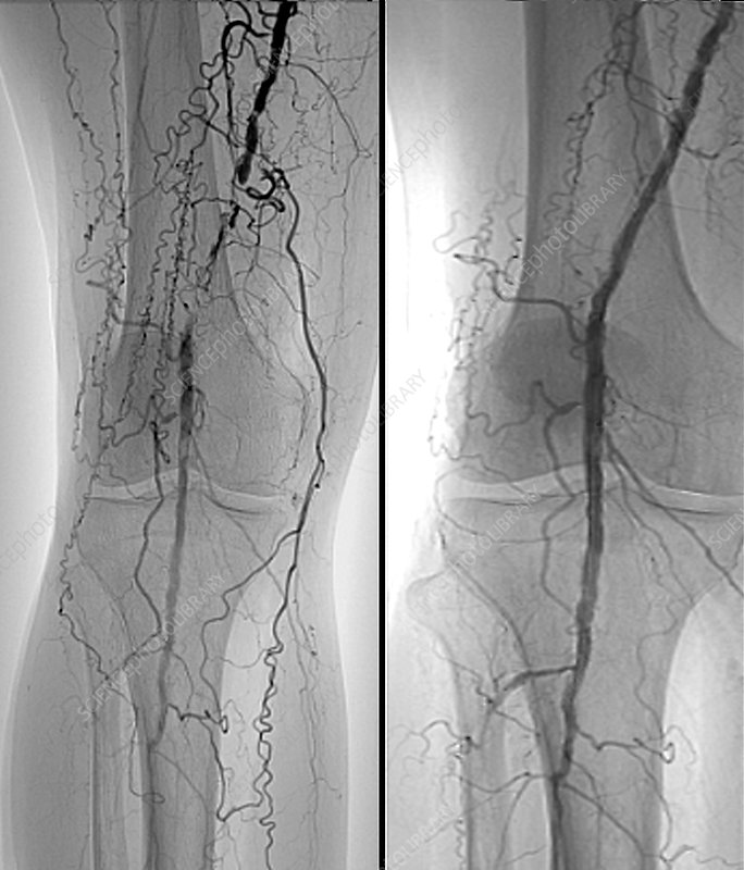 Treatment for blocked femoral artery, X-ray