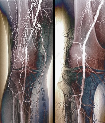 Treatment for blocked femoral artery, X-ray - Stock Image ...X Ray Femur Code
