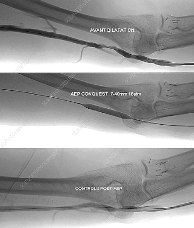 Treatment for blocked brachial vein, X-ray - Stock Image C033/7340 ...