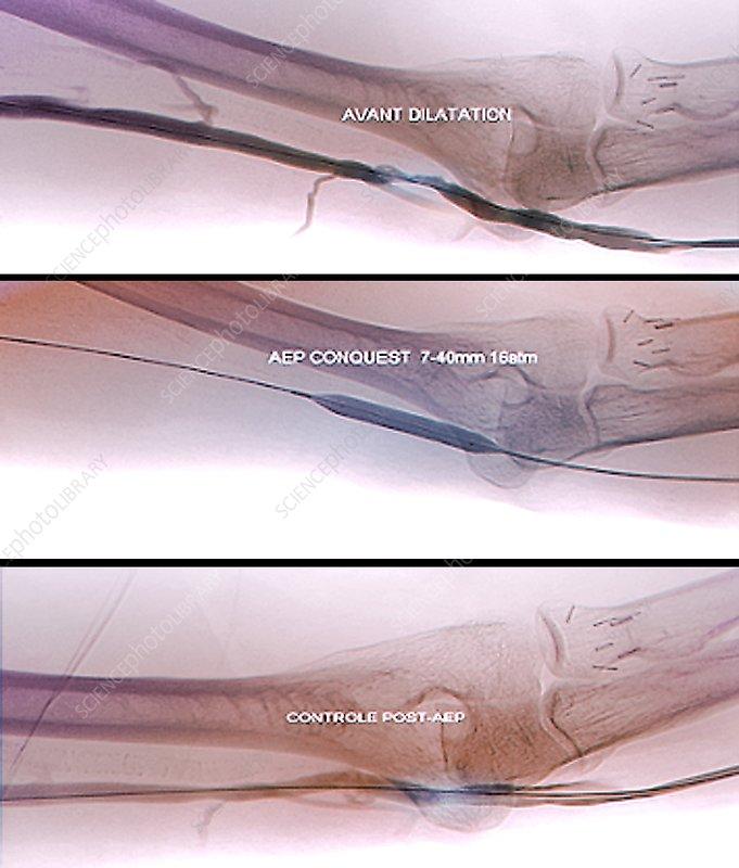 Treatment for blocked brachial vein, X-ray - Stock Image C033/7341 ...