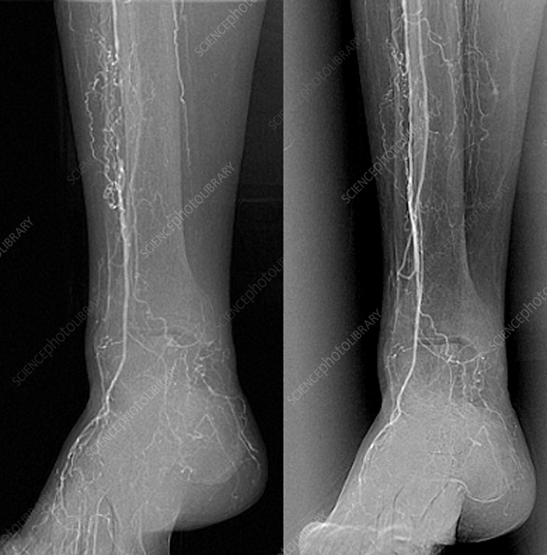 Treatment for blocked leg arteries, X-ray
