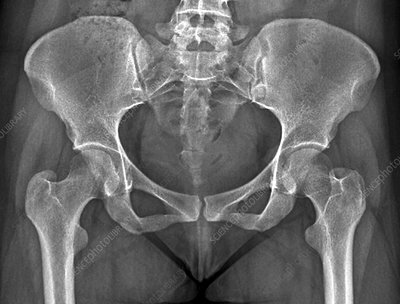 Female pelvis bones and joints, X-ray