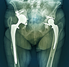 Double hip replacement, X-ray
