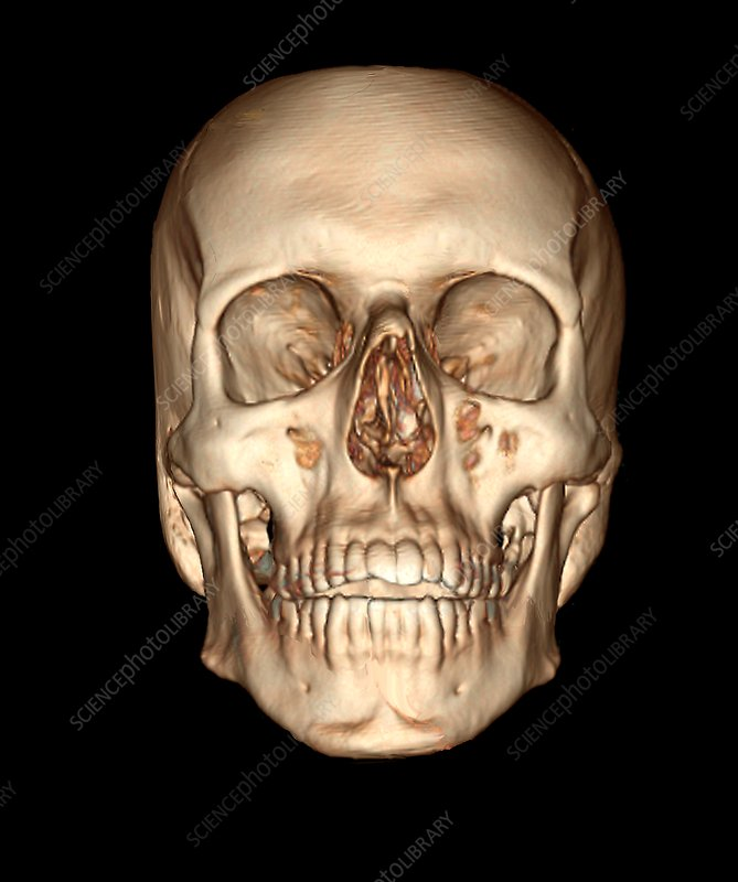Human skull, 3D CT scan