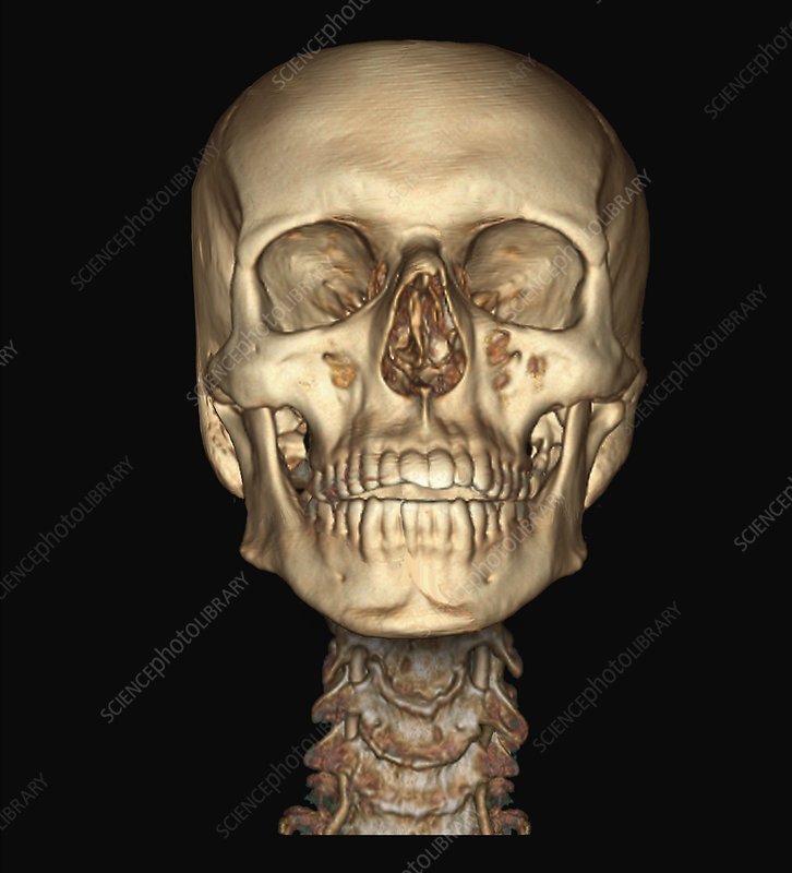 Human skull and spine, 3D CT angiogram - Stock Image - C033/7367