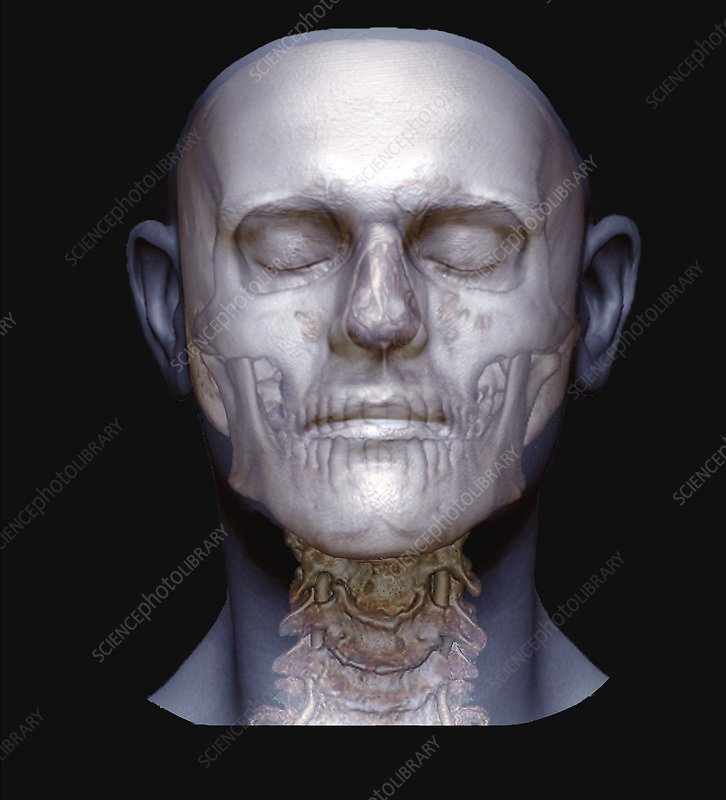 Human head, skull and spine, 3D CT angiogram