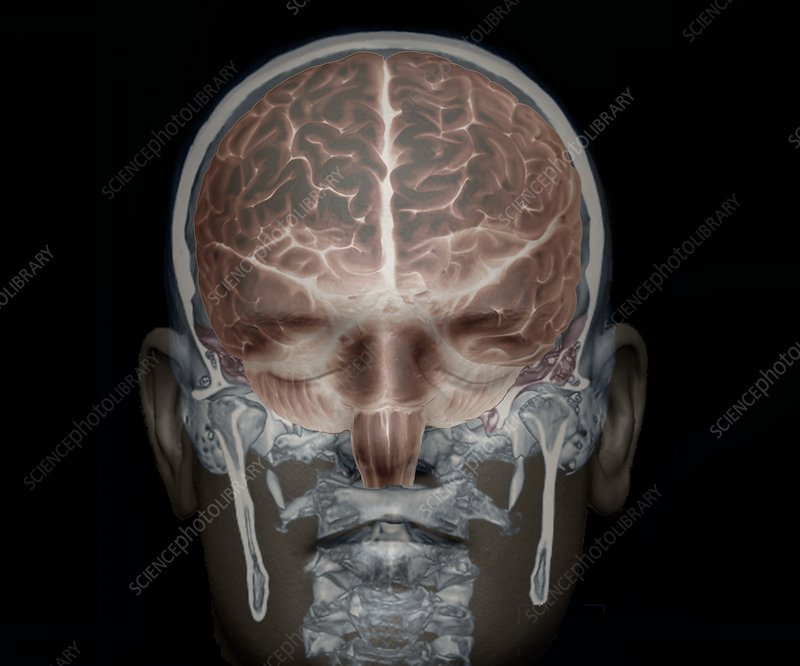 Brain and skull anatomy, 3D CT scan - Stock Image C033/7386 ...