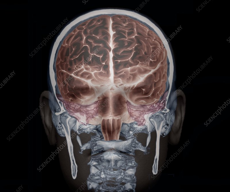 Brain and skull anatomy, 3D CT scan - Stock Image C033/7387 ...