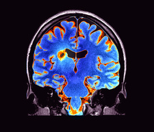 Multiple sclerosis, MRI scan