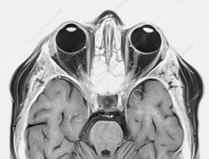 Optic nerve multiple sclerosis symptom, MRI scan