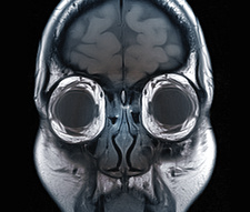Eye anatomy and muscles, MRI scan