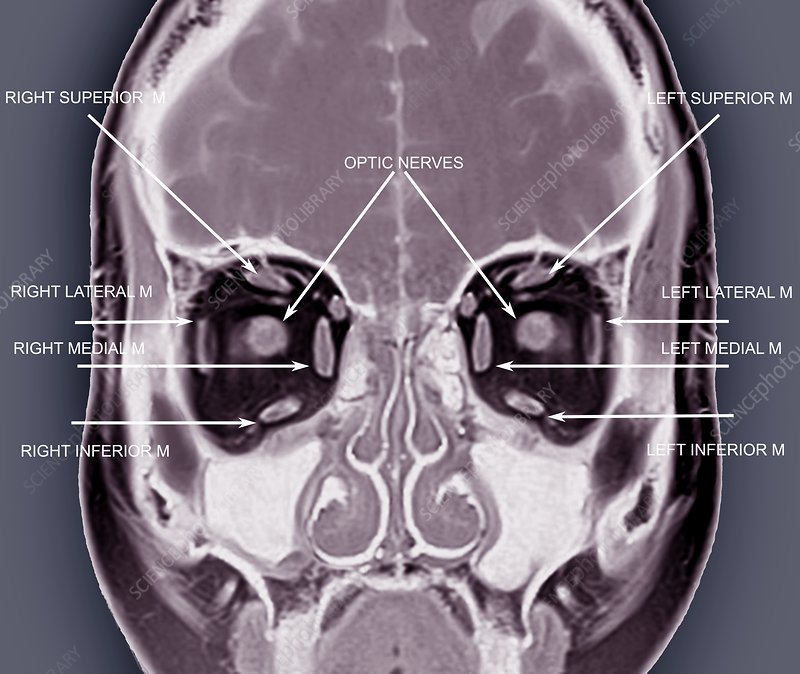 Eye anatomy and muscles, MRI scan - Stock Image C033/7451 - Science ...