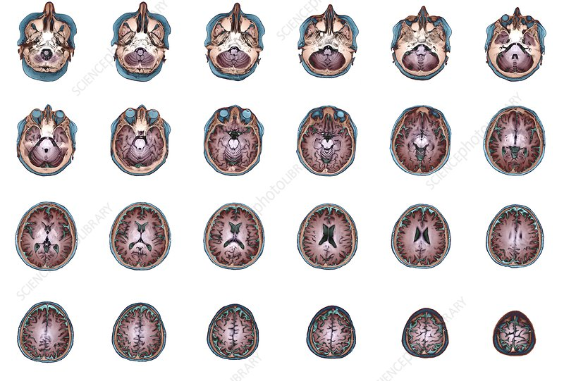 Human brain anatomy, MRI scans