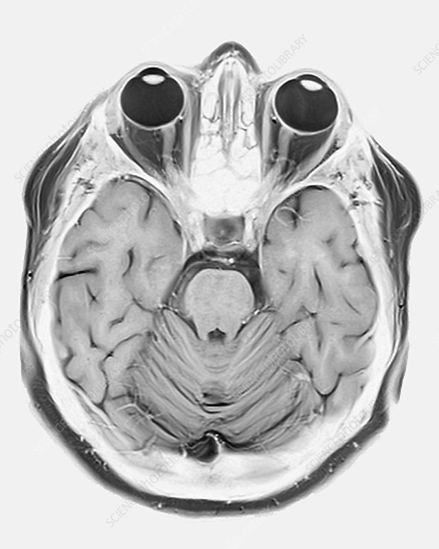 Human eyes and brain, MRI scan