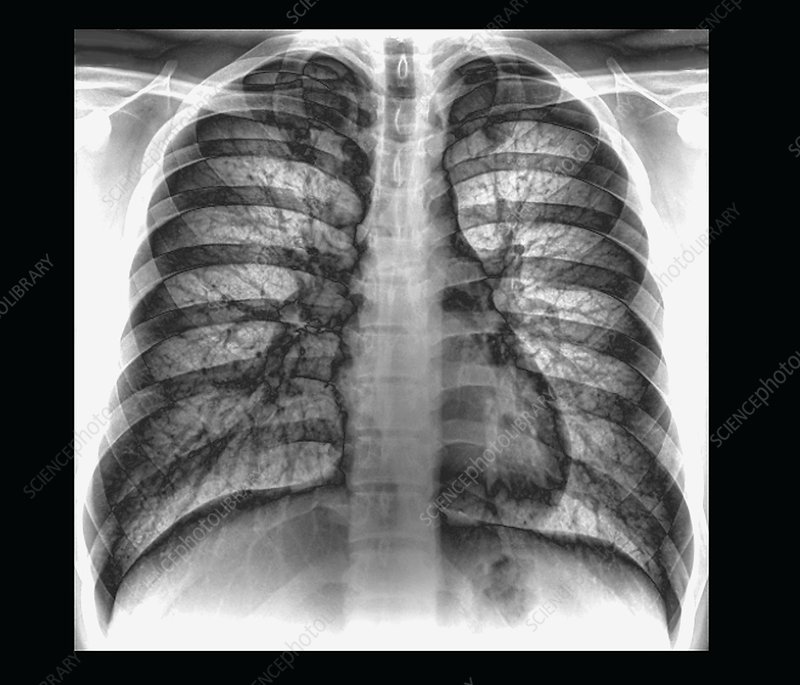 Heart and lungs, chest X-ray