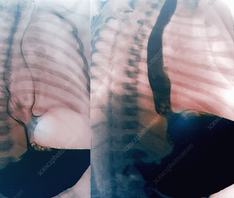 Oesophageal reflux, X-rays