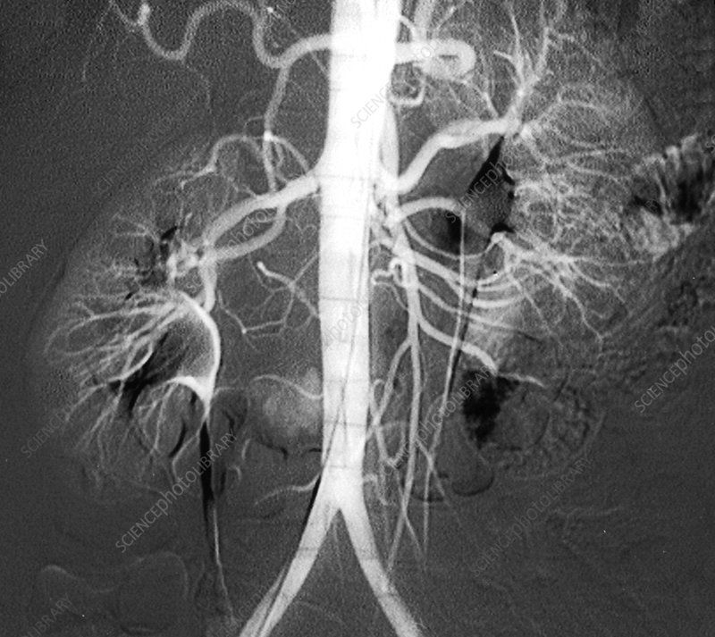 Kidney blood vessels, angiogram