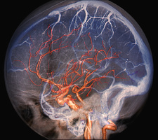 Brain blood vessels, 3D CT scan