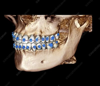 Orthodontic braces, 3D cone CT scan
