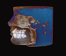 Inclined wisdom teeth, 3D cone CT scan