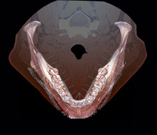 Lower jaw and teeth, 3D CT scan
