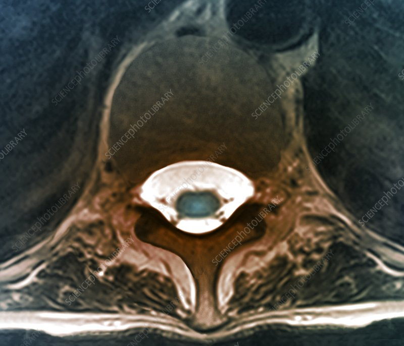 Thoracic vertebra and spinal cord, MRI scan