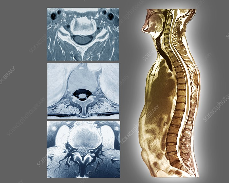 Backbone and spinal cord anatomy, MRI scans