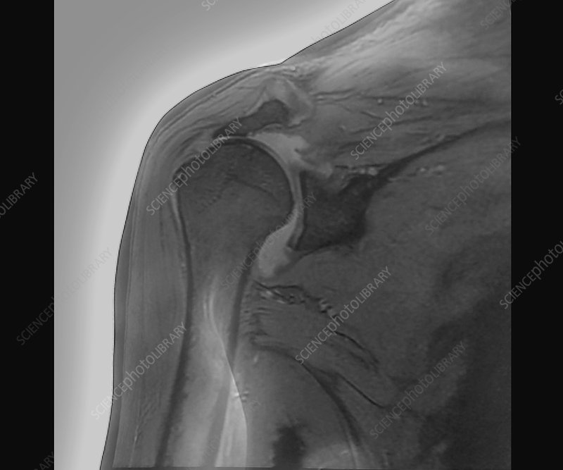 Shoulder tendon disorder, MRI scan