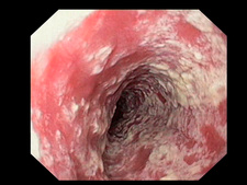 Candida and oesophagitis, endoscope view
